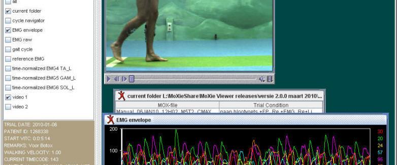 EMG en video